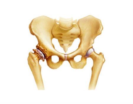 causas artrosis
