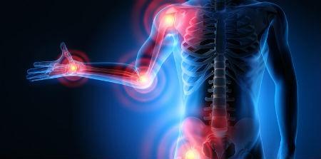 factores de riesgo artrosis