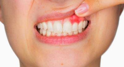 Gingivitis causas