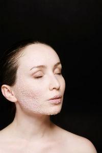 Señales faciales de la piel